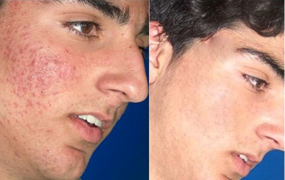 Blue Light Acne Treatment Miami Fl Bay Pointe