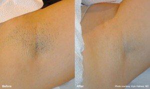 laser hair removal in miami fl by dr lima maribona bay
